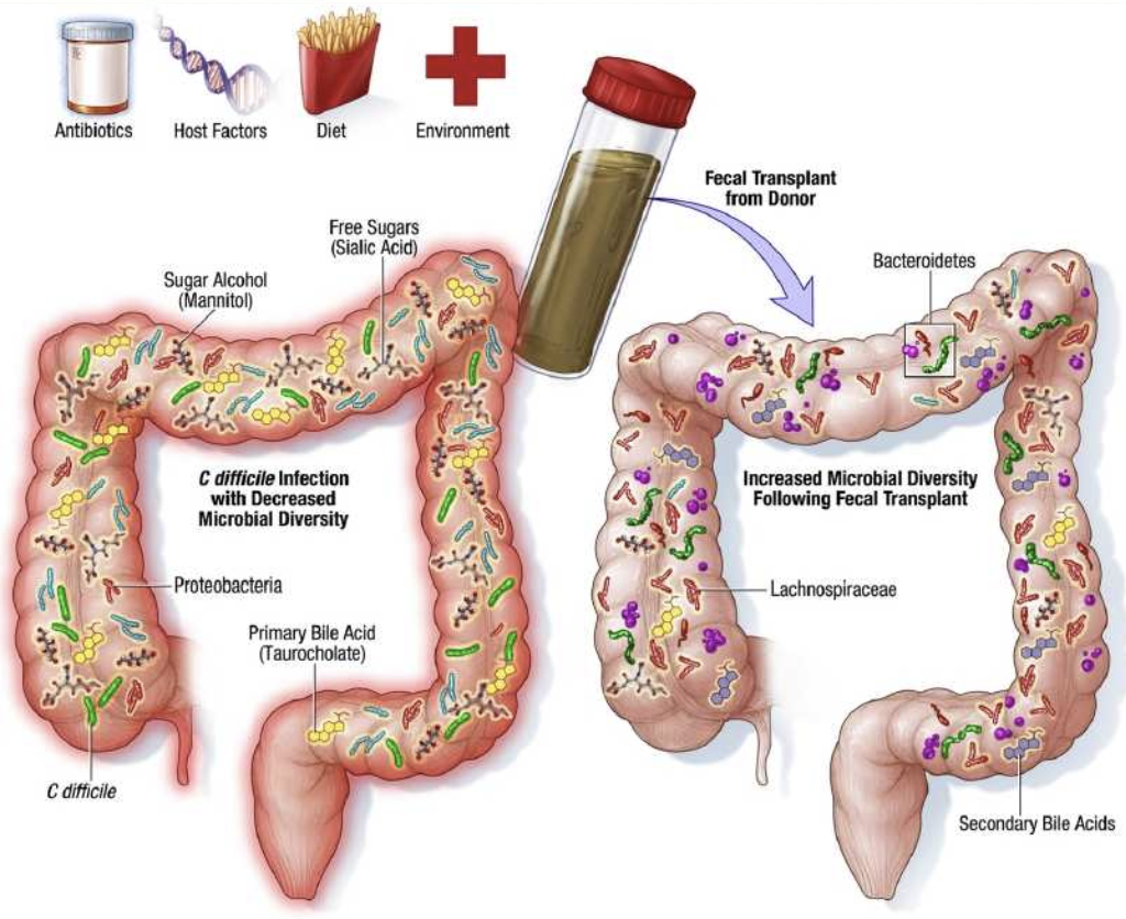 Fecal Transplant Treatment for C Diff: Successes, Risks, and