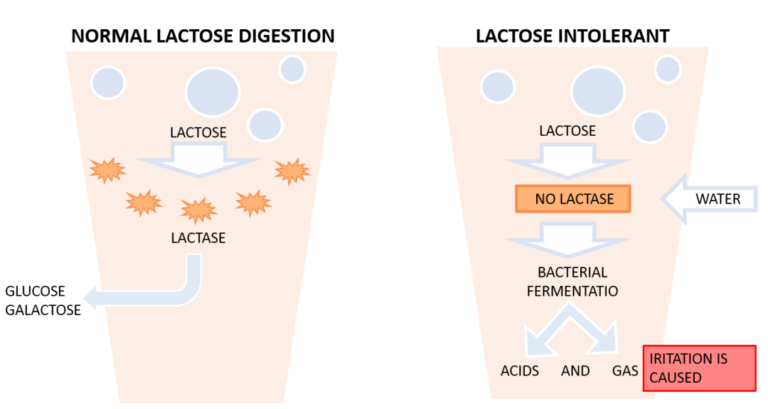 Lactose Intolerance Can Changing The Microbiome Alleviate -9507